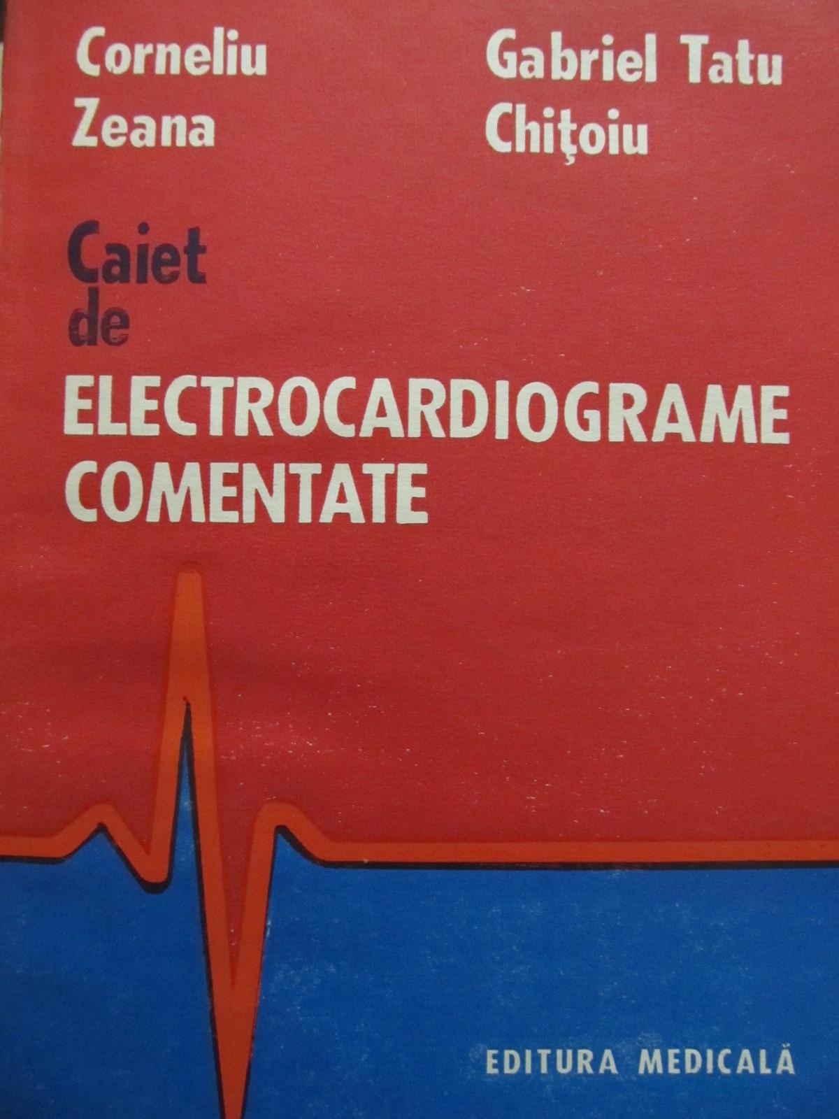 Caiet de electrocardiograme comentate - Corneliu Zeana , Gabriel Tatu Chitoiu | Detalii carte