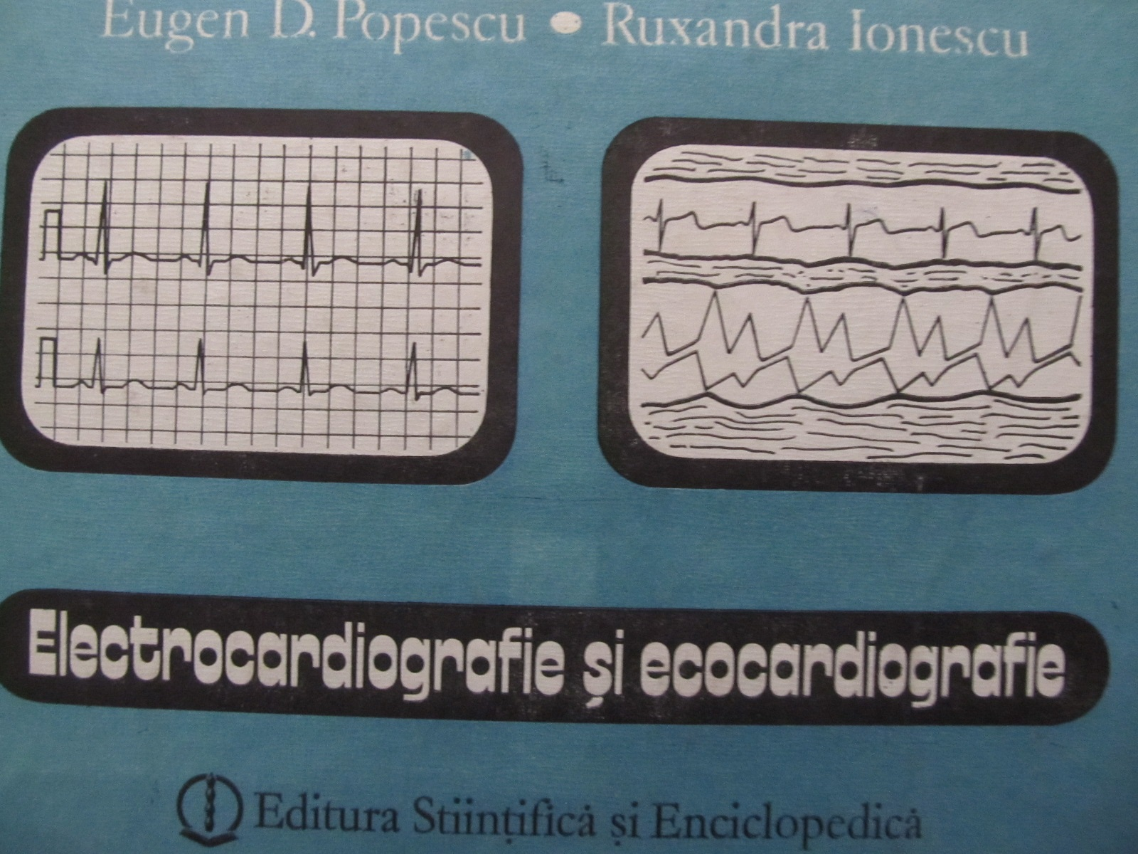 Electrocardiografie si ecocardiografie - Eugen D. Popescu , Ruxandra Ionescu | Detalii carte